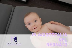 Bambino neonato plagiocefalia lettino
